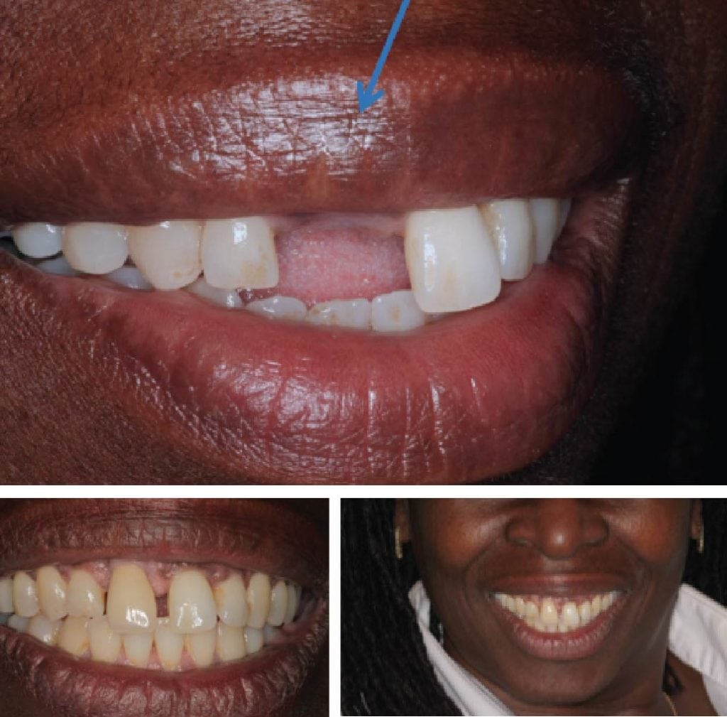 Missing UR Front Tooth Single Dental Implant