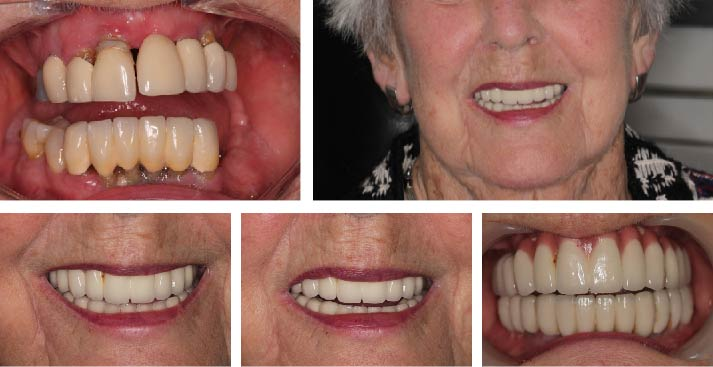 Full set of upper and lower fixed dental implants