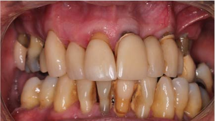 Full upper set of implants to retained a new fixed bridge