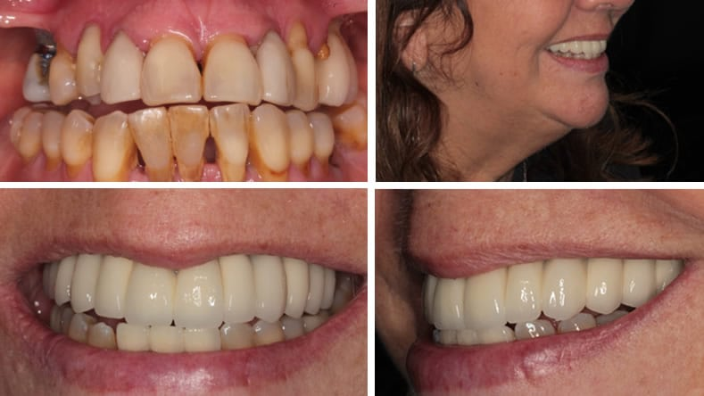 Full set of upper dental implants