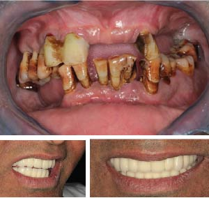 Success story 2 - Full Mouth Implants
