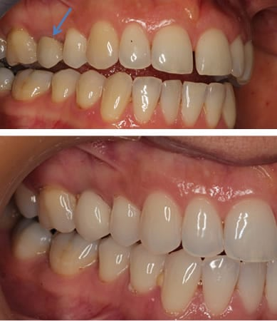 Crown With a Dental Implant