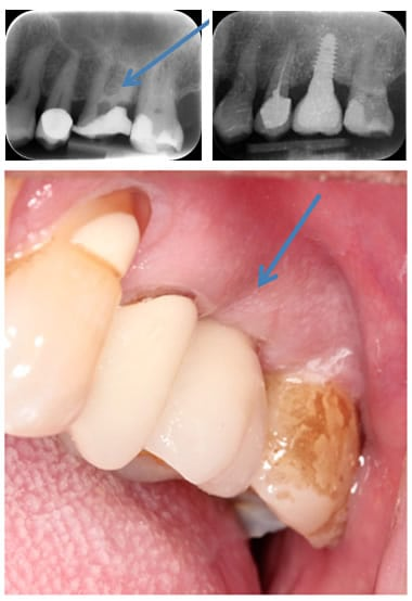 Crown Fixed to a Dental Implant Restoration