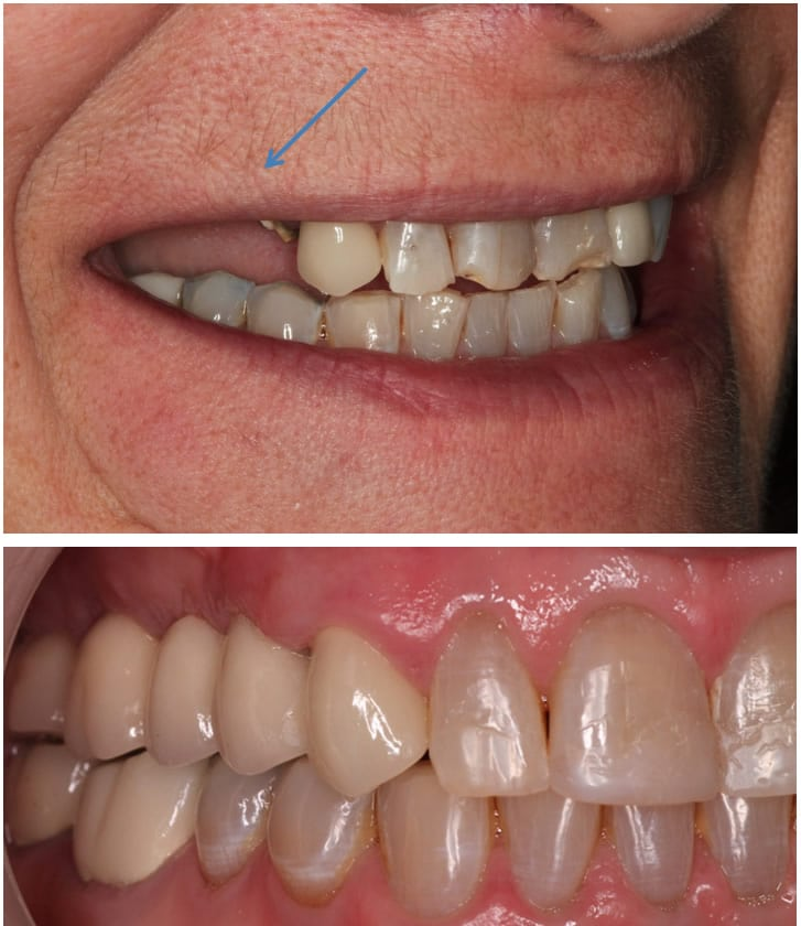 Dental implants Restoration with Fixed Bridge