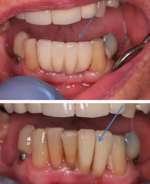 Lower 4 Unit Bridge Fixed to 2 Dental Implants