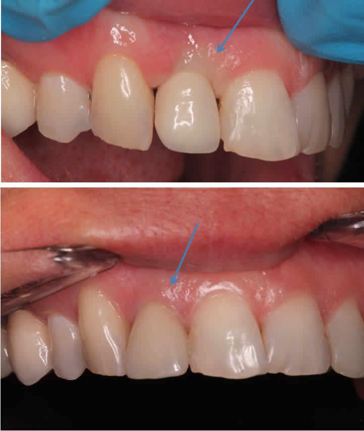 Immediate Dental Implant