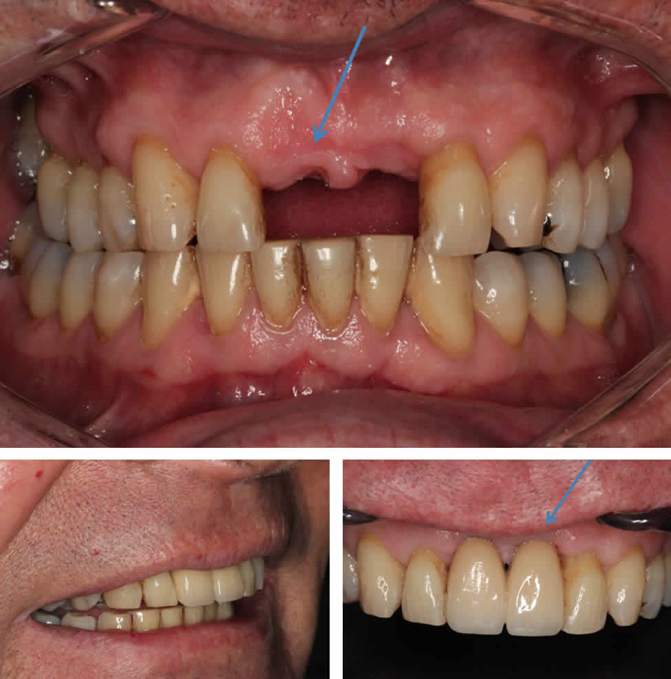 Missing Teeth With Two Dental Implants