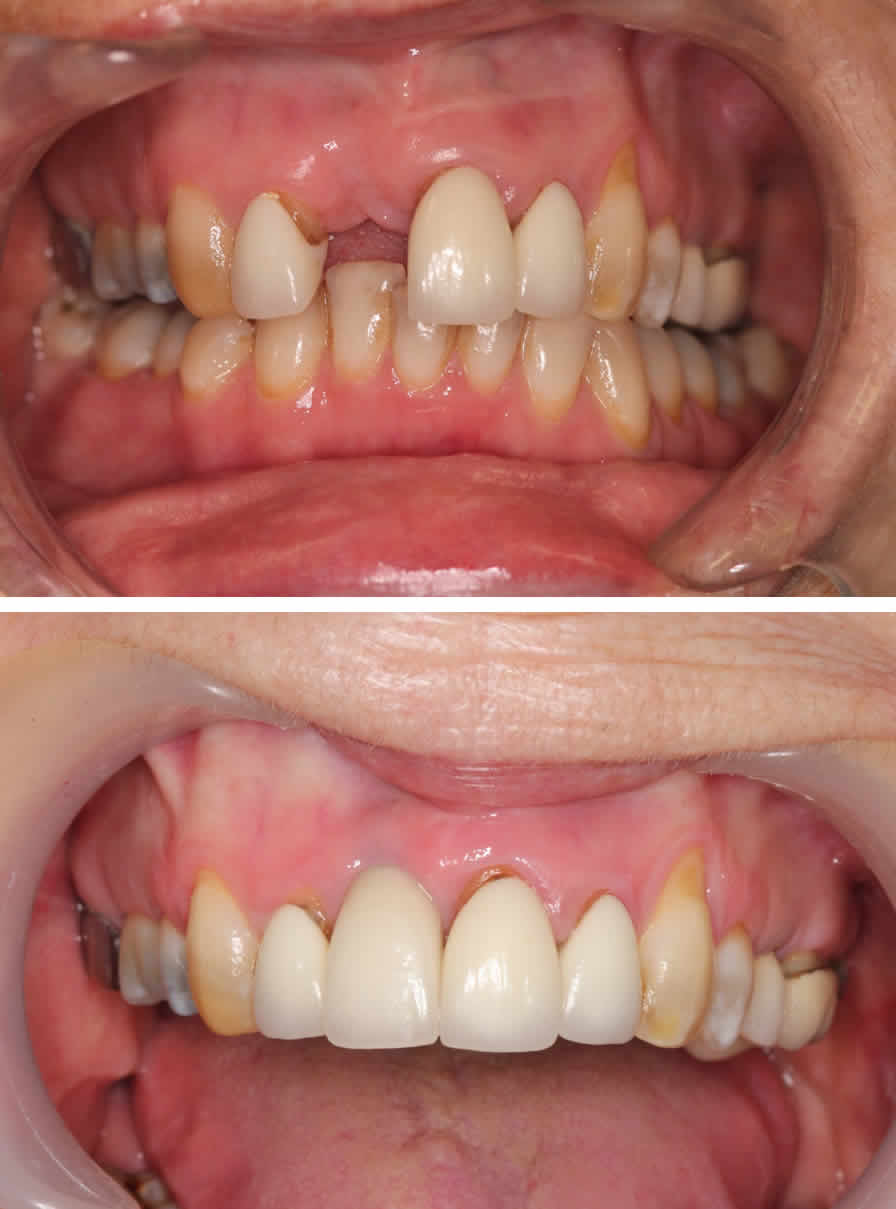 Upper Right Front Tooth Single Dental Implant