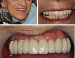 Success story 3 - Full Mouth Implants