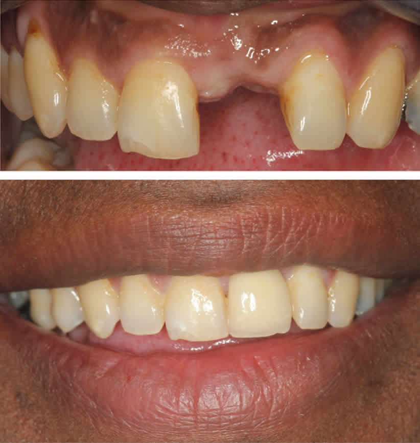 Missing Upper Central Incisor Dental Implant