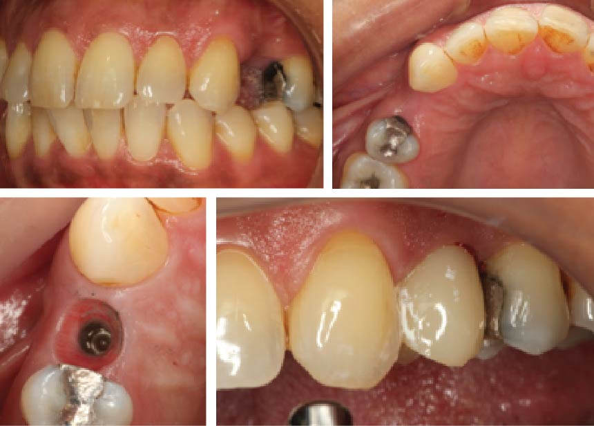 Missing Upper Left 1st Premolar Dental Implant