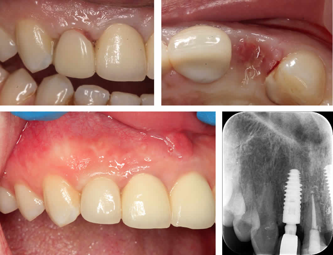 Missing Upper Right Front Tooth Dental Implant