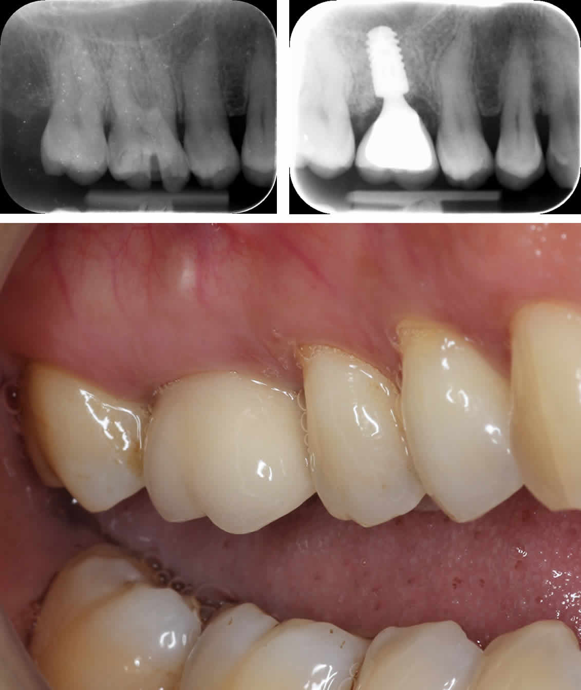 Failing Fractured Upper Right Molar Tooth