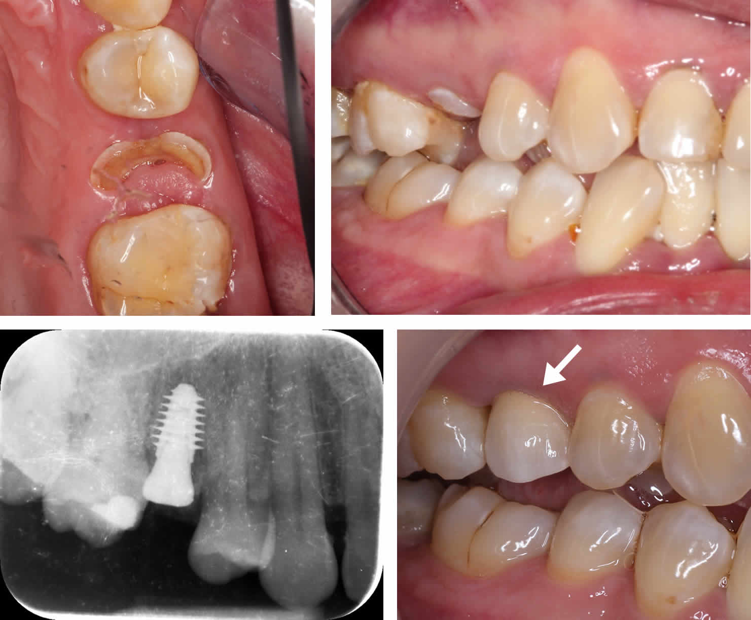 Failing Fractured Upper Right Premolar