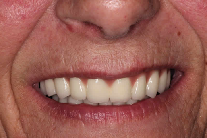 Several Failing Lower Teeth, a Loose Upper Denture and Loose Upper Teeth