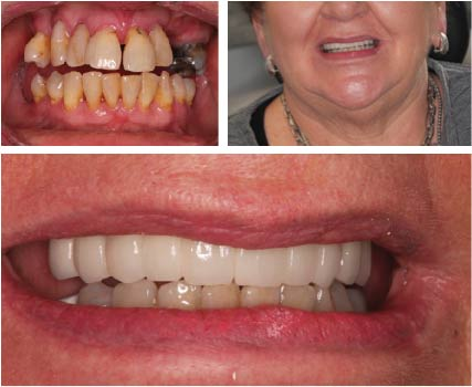 Success story 4 - Full Mouth Implants