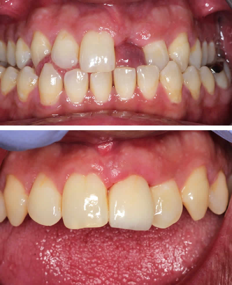 Missing Upper Left Front Tooth
