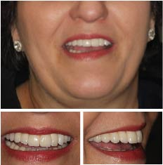 Success story 6 - Upper Failing Teeth
